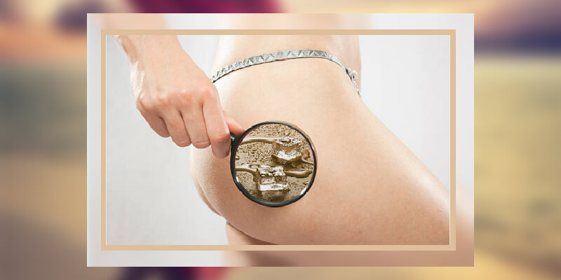 Cryolipolysis Institute of the leg